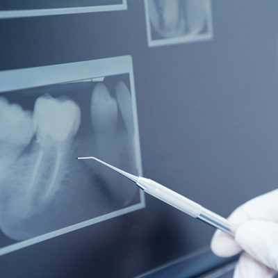 radiologia-digitale-500x500